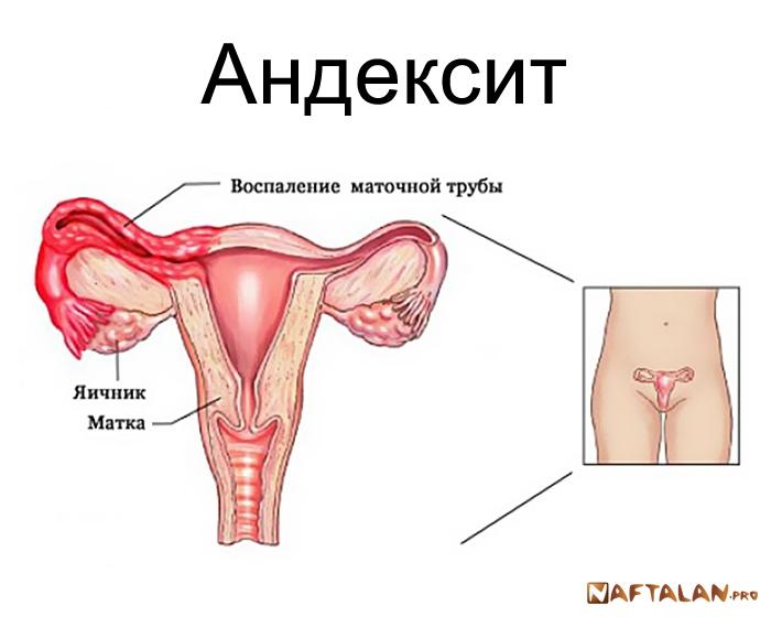 Как лечить хроническое воспаление придатков матки