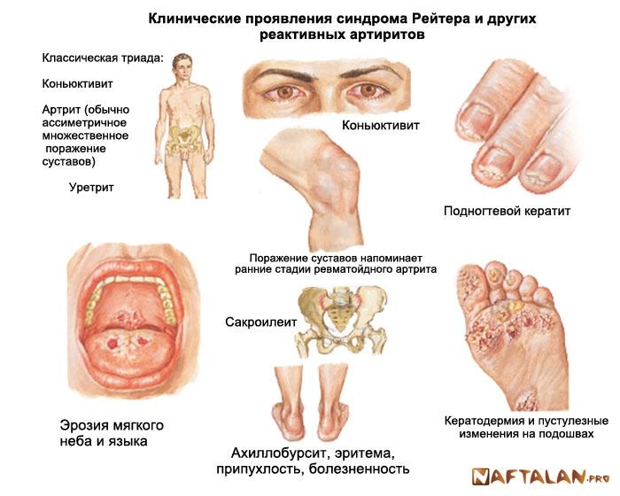 симпптомы при болезни суставов