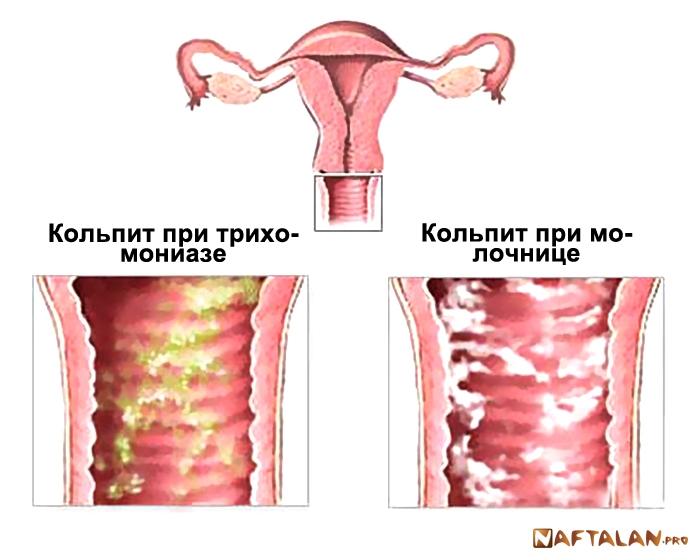 Хламидии и секс при лечении