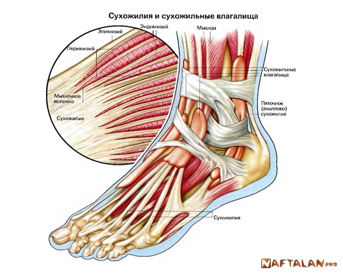 воспаление сухожилий суставов на ноге