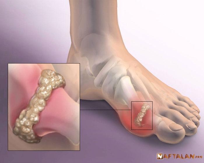 Лечение деформирующего остеоартроза в Нафталане
