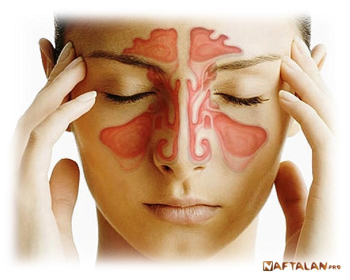 мозг запах изо рта