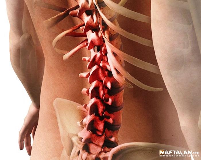 Межпозвоночный остеохондроз лечение в Нафталане