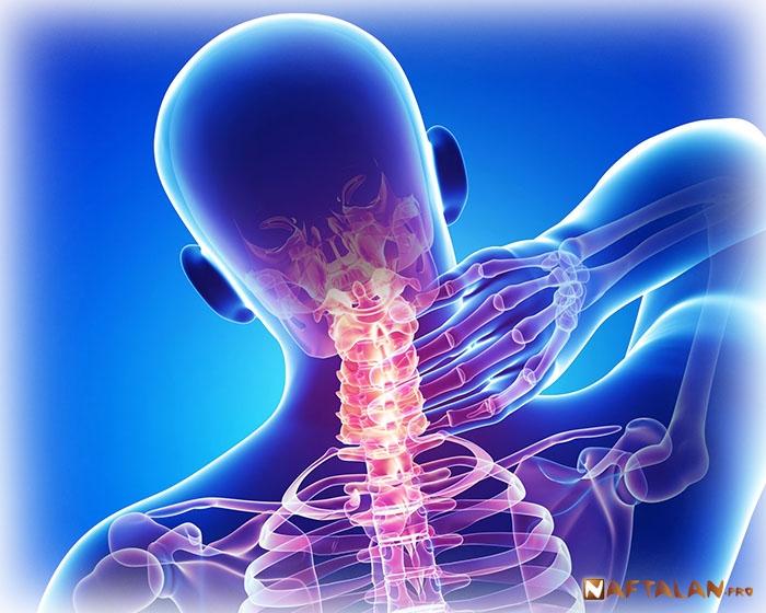 Радикулит симптомы и лечение - радикулит поясничный, грудной ...