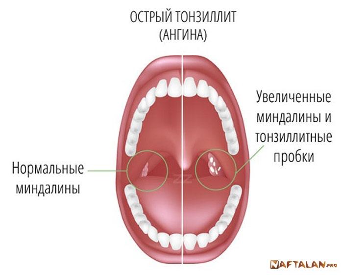 Молочница во рту у ребенка симптомы лечение фото