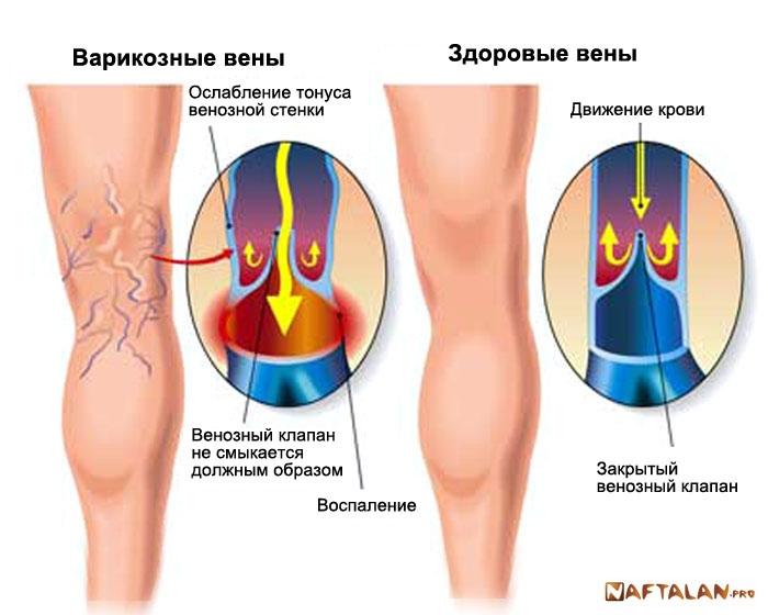 Лечение варикоза ног пиявками, помогает? - обсуждение